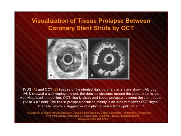 IVUS (A) and OCT (B) images of the stented right coronary artery are shown. Although IVUS showed a well-deployed stent, th...