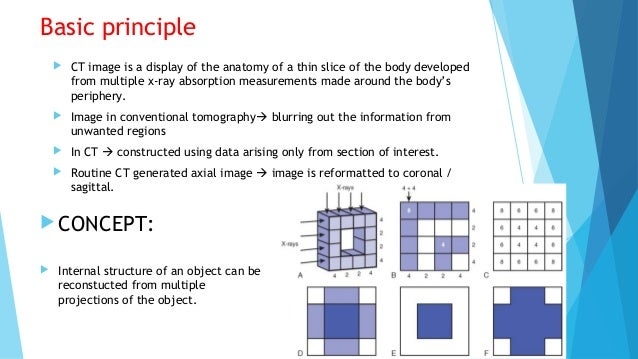 Physics Of Multidetector Ct Scan