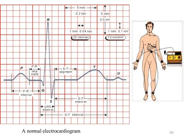 101A normal electrocardiogram