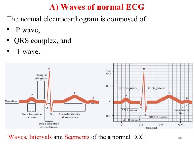 A) Waves of normal ECG The normal electrocardiogram is composed of • P wave, • QRS complex, and • T wave. 102Waves, Interv...