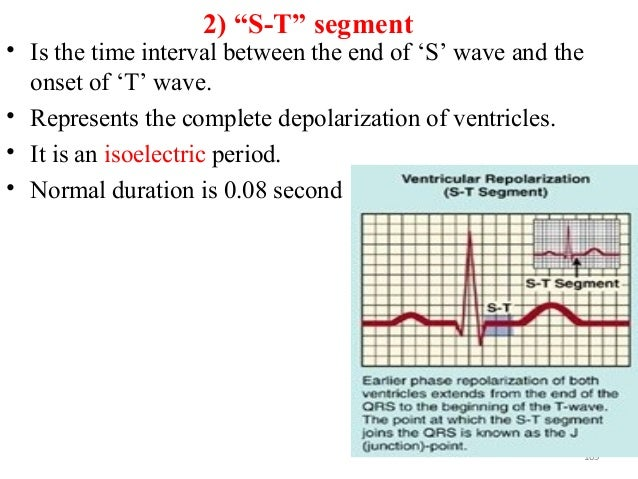 """2) """"S-T"""" segment • Is the time interval between the end of 'S' wave and the onset of 'T' wave. • Represents the complete d..."""