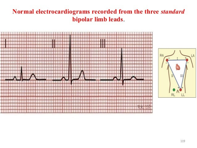 Normal electrocardiograms recorded from the three standard bipolar limb leads. 119
