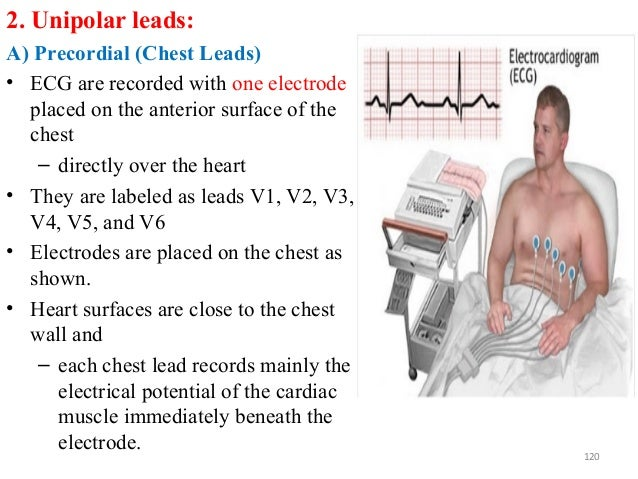 2. Unipolar leads: A) Precordial (Chest Leads) • ECG are recorded with one electrode placed on the anterior surface of the...