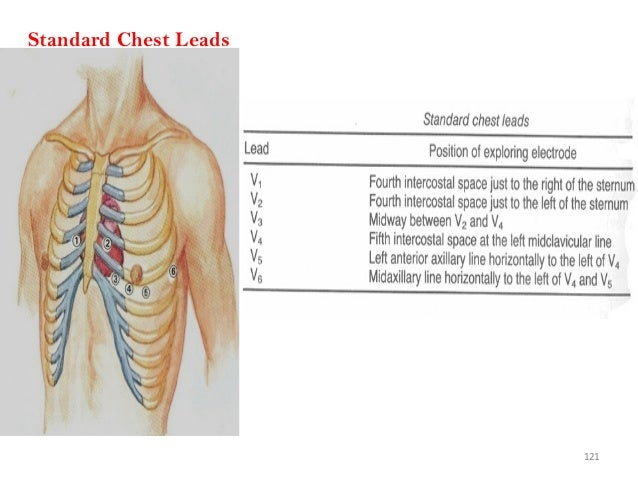 121 Standard Chest Leads