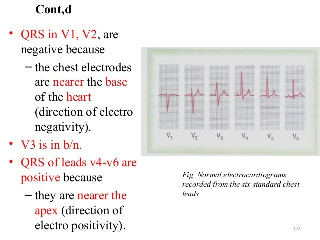 Cont,d • QRS in V1, V2, are negative because – the chest electrodes are nearer the base of the heart (direction of electro...