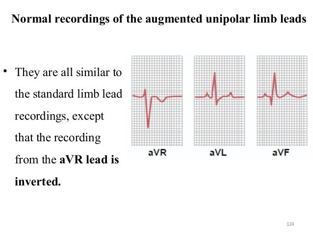 Normal recordings of the augmented unipolar limb leads • They are all similar to the standard limb lead recordings, except...