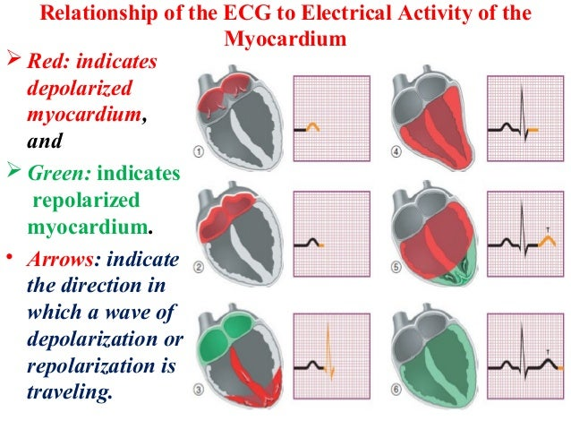 Relationship of the ECG to Electrical Activity of the Myocardium  Red: indicates depolarized myocardium, and  Green: ind...