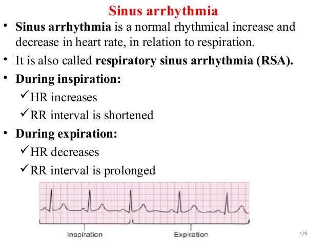 Sinus arrhythmia • Sinus arrhythmia is a normal rhythmical increase and decrease in heart rate, in relation to respiration...