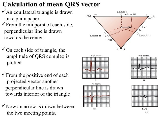 Calculation of mean QRS vector 143 An equilateral triangle is drawn on a plain paper. From the midpoint of each side, pe...