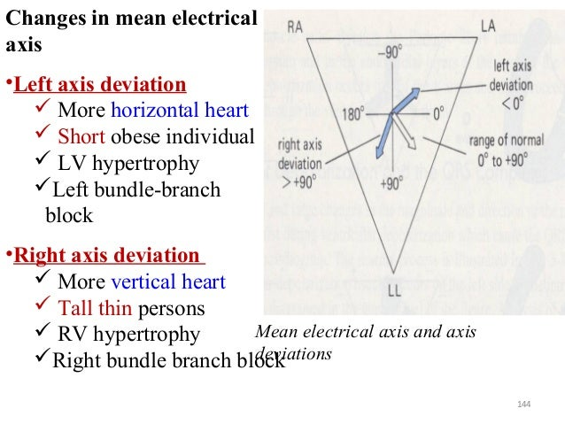 Cont'd 144 Changes in mean electrical axis •Left axis deviation  More horizontal heart  Short obese individual  LV hype...