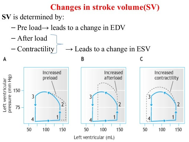 Changes in stroke volume(SV) SV is determined by: – Pre load→ leads to a change in EDV – After load – Contractility → Lead...