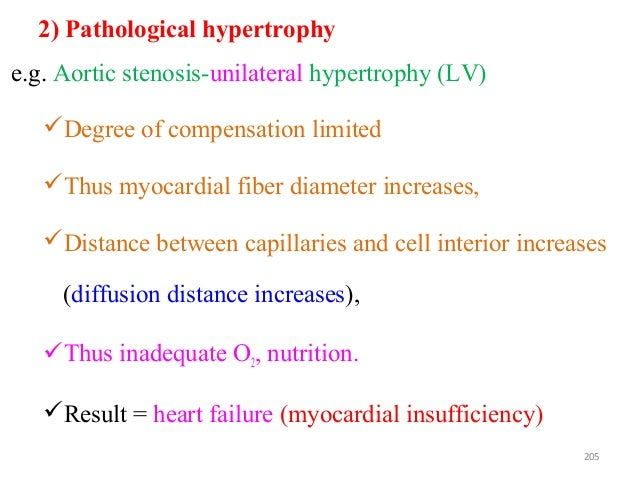 2) Pathological hypertrophy e.g. Aortic stenosis-unilateral hypertrophy (LV) Degree of compensation limited Thus myocard...