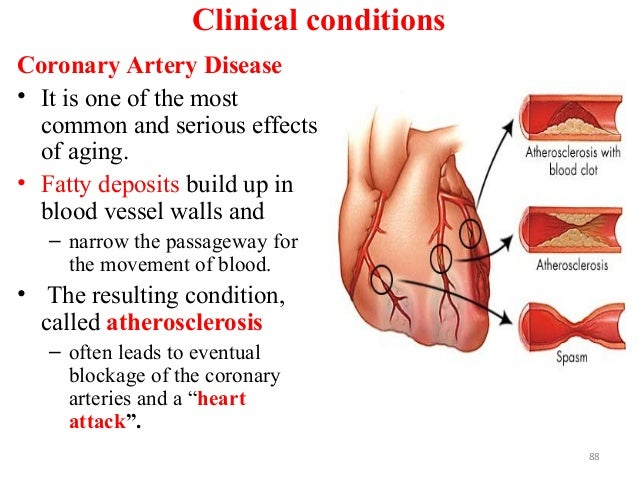 Clinical conditions Coronary Artery Disease • It is one of the most common and serious effects of aging. • Fatty deposits ...