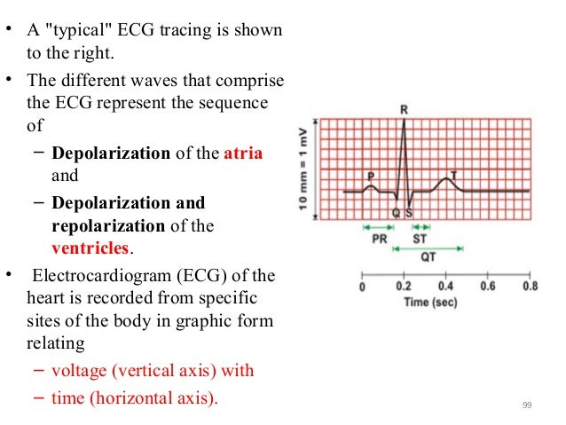 """• A """"typical"""" ECG tracing is shown to the right. • The different waves that comprise the ECG represent the sequence of – D..."""