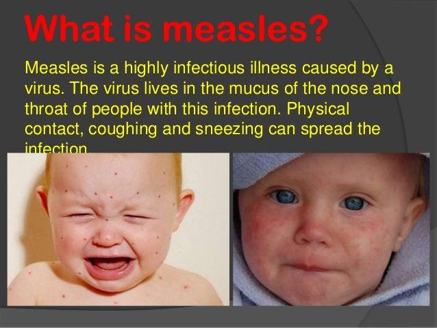 what do preschoolers like measles 692
