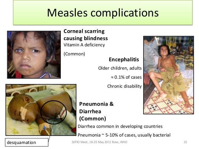 adverse effects following vaccination immunisation handbook