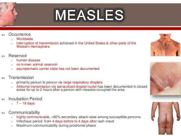 What does measles look like? - Measles: 7 things parents ...