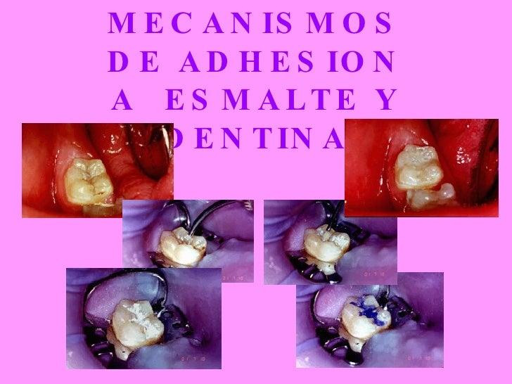 MECANISMOS DE ADHESION A  ESMALTE Y DENTINA