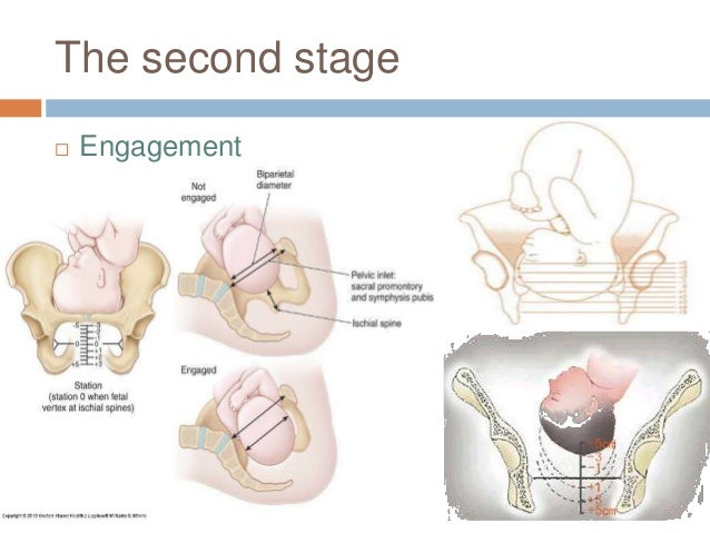 The second stage  Engagement  Station zero