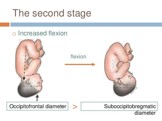 The second stage  Increased flexion Occipitofrontal diameter Suboccipitobregmatic diameter > flexion