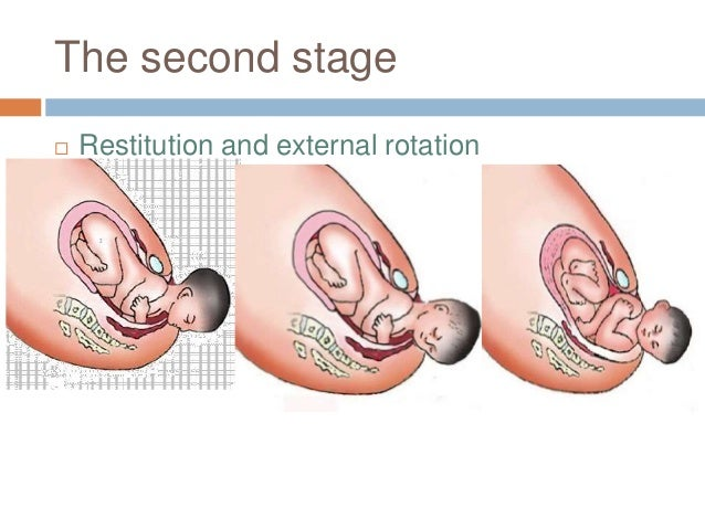 The second stage  Restitution and external rotation
