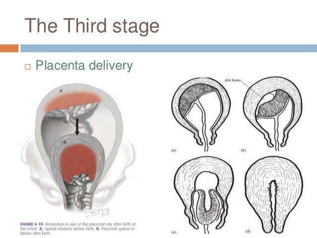 The Third stage  Placenta delivery