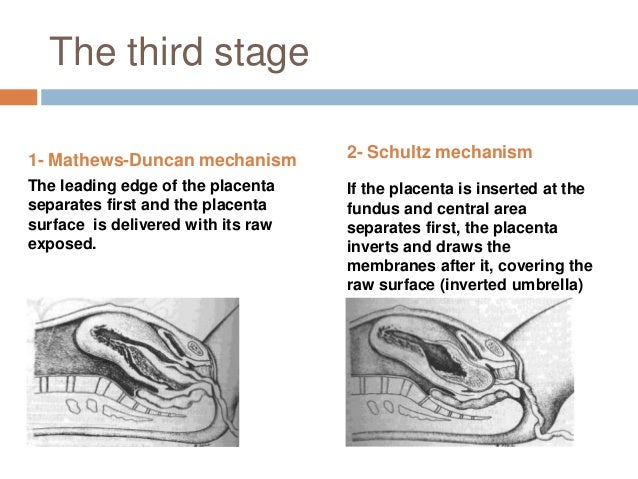 """Management of the labour """"2nd stage""""  DELIVERY OF THE HEAD 1) Control the delivery of the head to prevent laceration 2) P..."""