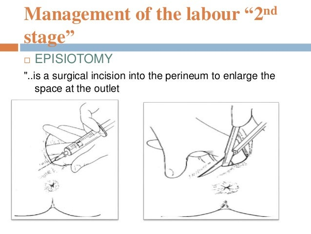 """Management of the labour """"2nd stage""""  Repair of Episiotomy Continuous sutures Interrupted sutures Interrupted suture or s..."""