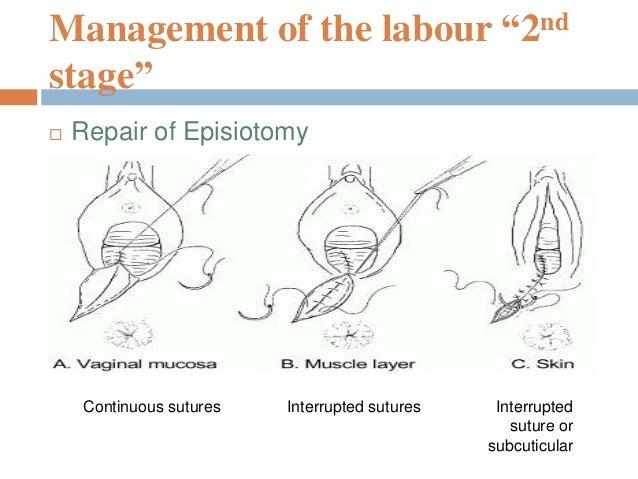 Mechanism of normal labour