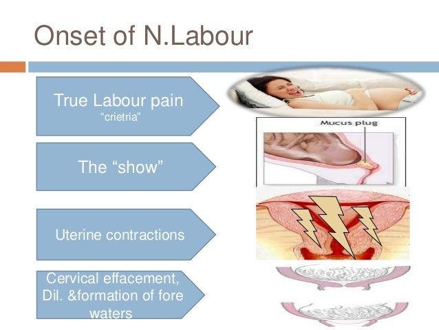 """Onset of N.Labour True Labour pain """"crietria"""" The """"show"""" Uterine contractions Cervical effacement, Dil. &formation of fore..."""
