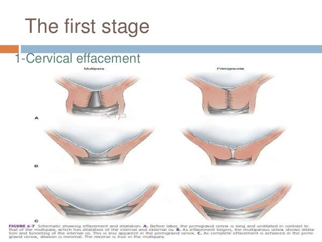 The first stage 1-Cervical effacement