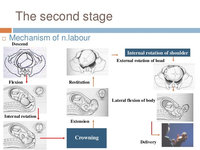 The second stage  Mechanism of n.labour Descend Flexion Internal rotation Crowning Extension Restitution Internal rotatio...