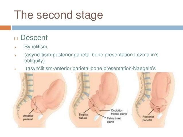 The second stage  Descent  Synclitism  (asynclitism-posterior parietal bone presentation-Litzmann's obliquity).  (asyn...