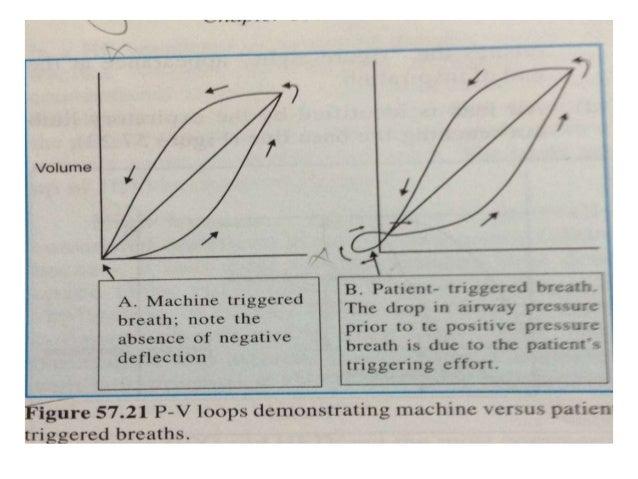 High frequency ventilator
