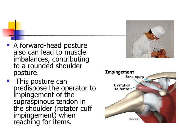 <ul><li>A forward - head posture also can lead to muscle imbalances, contributing to a rounded shoulder posture. </li></ul...