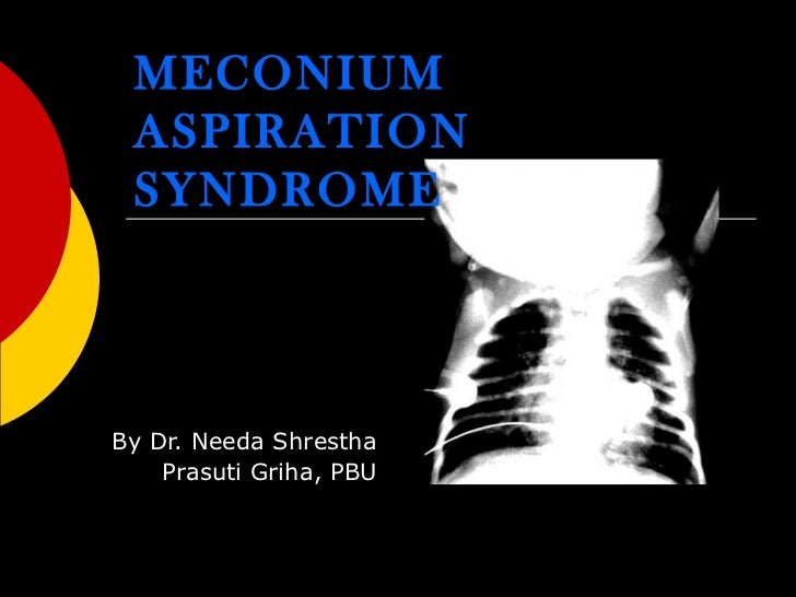 meconium aspiration syndrome Meconium aspiration syndrome is a serious condition in which a newborn breathes a mixture of meconium and amniotic fluid into the lungs around the time of delivery this can cause breathing difficulties due to swelling (inflammation) in the baby's lungs after birth.