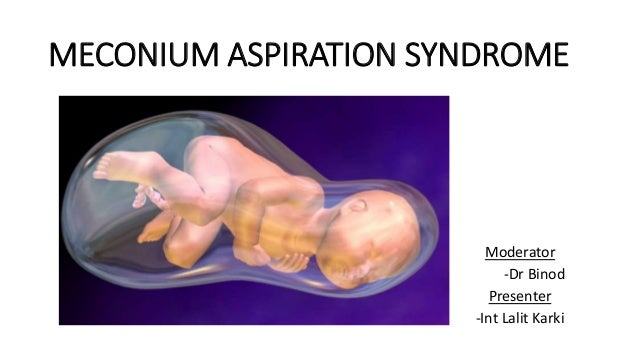 meconium aspiration syndrome During pregnancy, the intestinal tract of a fetus is lined with a dark green fecal  material called meconium while in the uterus, a number of.