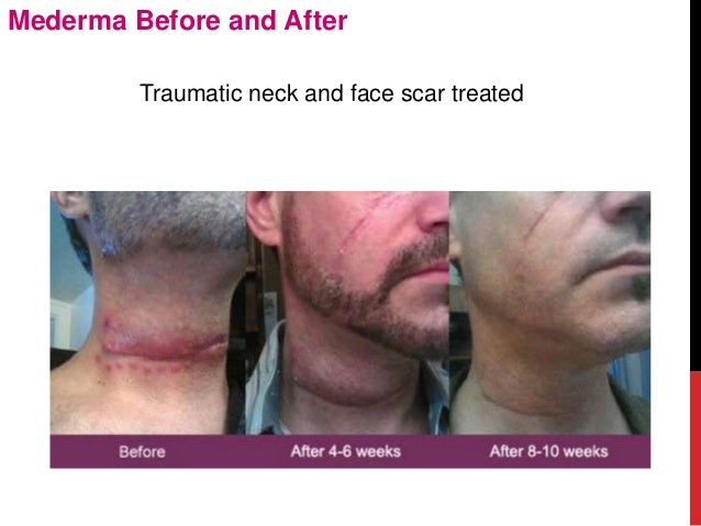 Mederma before-and-after