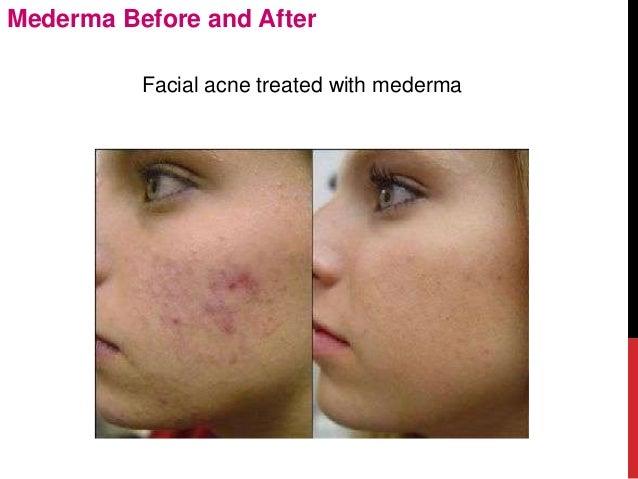 acne marks on face