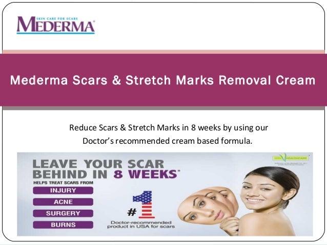Mederma Scars & Stretch Marks Removal Cream