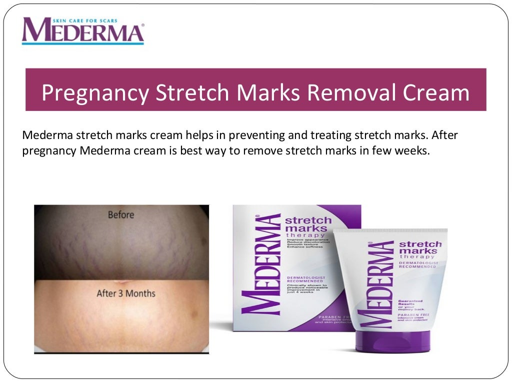Mederma Scars Stretch Marks Removal Cream