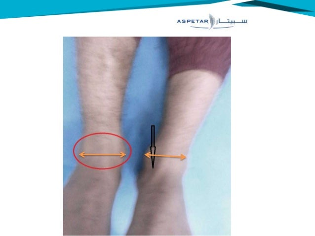 lateral malleolus swelling - photo #6