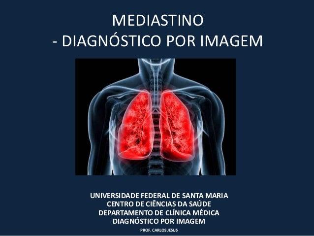 MEDIASTINO- DIAGNÓSTICO POR IMAGEM    UNIVERSIDADE FEDERAL DE SANTA MARIA        CENTRO DE CIÊNCIAS DA SAÚDE      DEPARTAM...