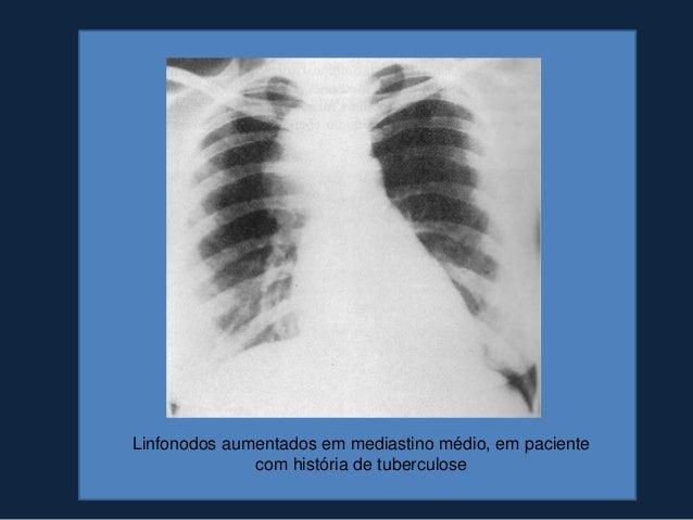 TUMORES NEUROGÊNICOS• Crianças: ganglioneuroma(neoplasma composto de fibras  nervosas e células ganglionares maduras) e  n...