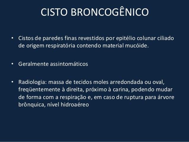 CARCINOMA DE ESÔFAGO• 4 a 10% das malignidades gastrointestinais• FR: álcool, tabagismo, DRGE, carcinógenos ingeridos,  da...