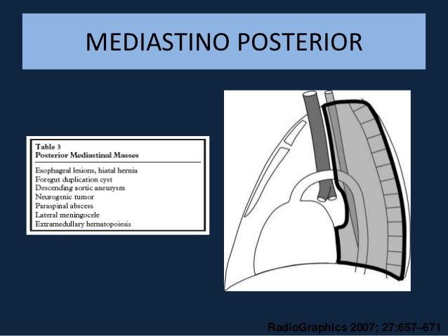 CONDIÇÕES DIVERSAS• MEDIASTINITE: pneumomediastino, alargamento de  mediastino superior, derrame pleural• HEMORRAGIAS MEDI...