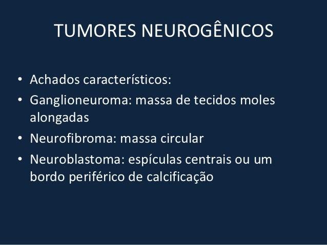 HEMORRAGIA MEDIASTINAL• Ocorre após trauma fechado ou penetrante,  ruptura de aneurisma da aorta ou problemas  da coagulaç...
