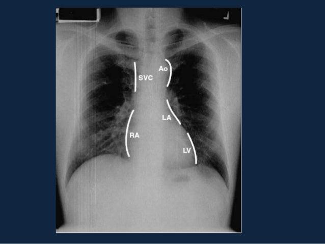 MEDIASTINO•   Anterior     – 1.Artéria nominada Tortuosa, Aumento dos linfonodos,        bócio retroesternal e deposição d...