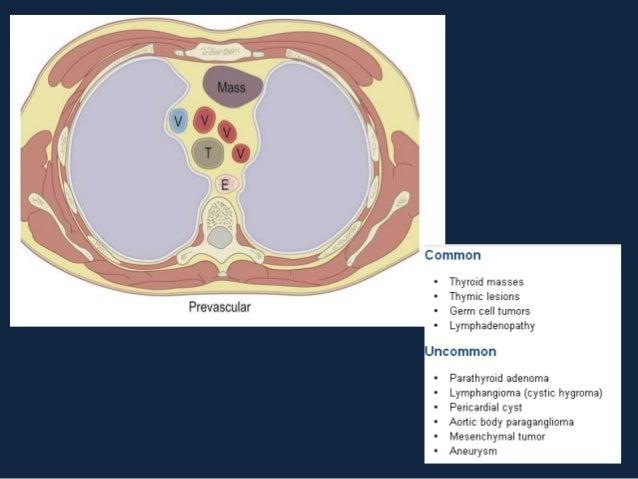 LINFOMA• Neoplasia maligna composta de linfócitos, histiócitos  e células inflamatórias.• Classificação: Hodgkin x não Hod...