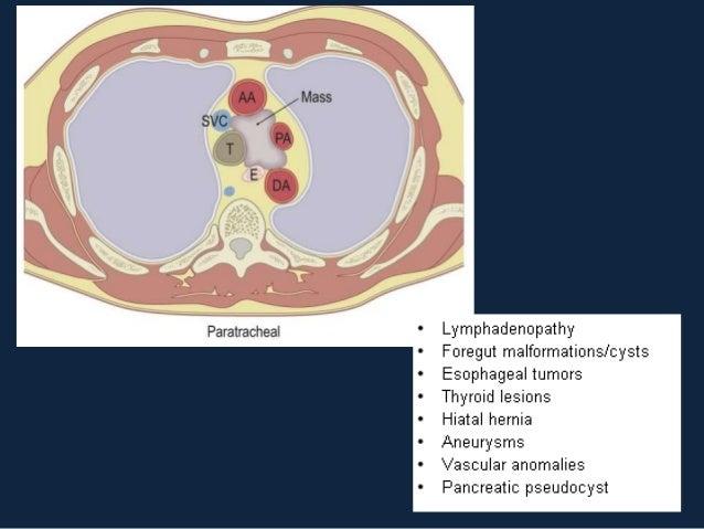 LINFOMA DE HODGKIN• Faixa etária: bimodal ( 25 -30 anos e > 70 anos)• 67% tem envolvimento intratorácico na apresentação  ...